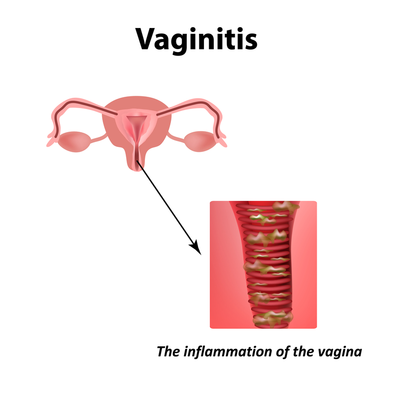 fishy smell vaginal and penile how to get rid of